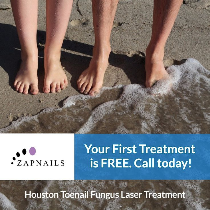 Best 10+ Toenail fungus laser treatment ideas on Pinterest ...