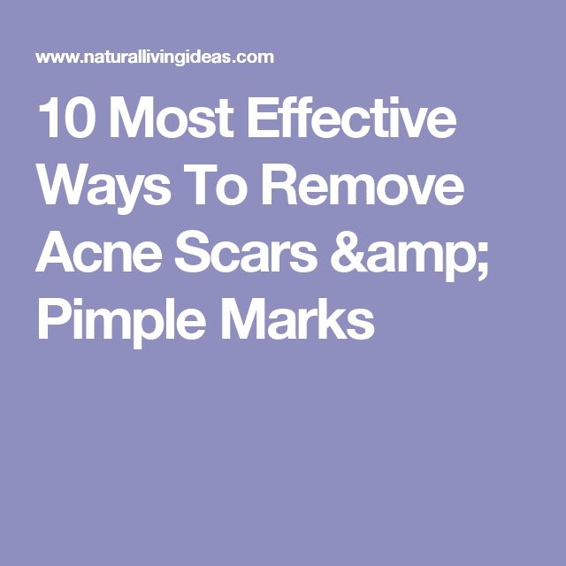 10 Most Effective Ways To Remove Acne Scars & Pimple Marks