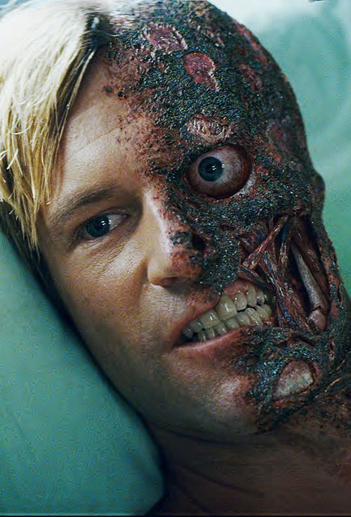 Aaron Eckhart as Harvey Dent/Two Face in The Dark Knight ---- Poor Harvey. :(