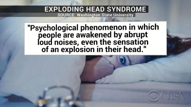 """Exploding head syndrome"" is real, and surprisingly common - CBS News"