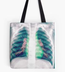 Chest x-ray of a 3 year old female baby Tote Bag