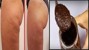 Pelle liscia, morbida e senza Cellulite. Usa questa mistura NATURALE e vedrai risultati sorprendenti http://salutecobio.com/cellulite-crema-sorprendente