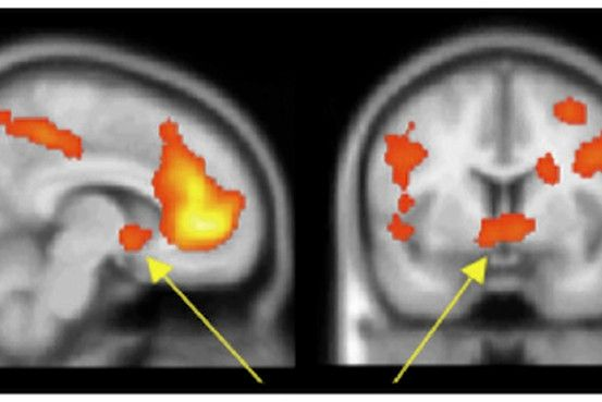I am OBSESSED with brain studies... like this...    Why we like to share and talk about ourselves by Robert Lee Holtz, wsj: Harvard neuroscientists Diana Tamir and Jason Mitchell find that self disclosure triggers the same sensation of pleasure in the brain as food or money. (The aha of social media?) http://tinyurl.com/7aeyqft   #Science #Diana_Tamir #Jason_Mitchell #wsj #Robert_Lee_Hotz
