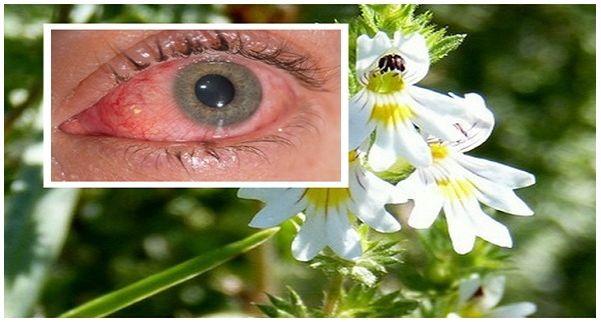 Tudományosan bizonyították, hogy a képen látható gyógynövény csodát tesz a szem betegségeivel akkor is, ha egy fertőzésről van szó vagy idősebbeknél...