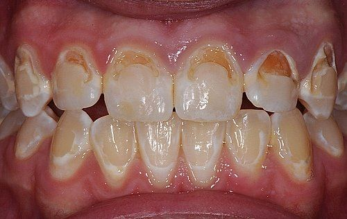 33 best images about braces on pinterest