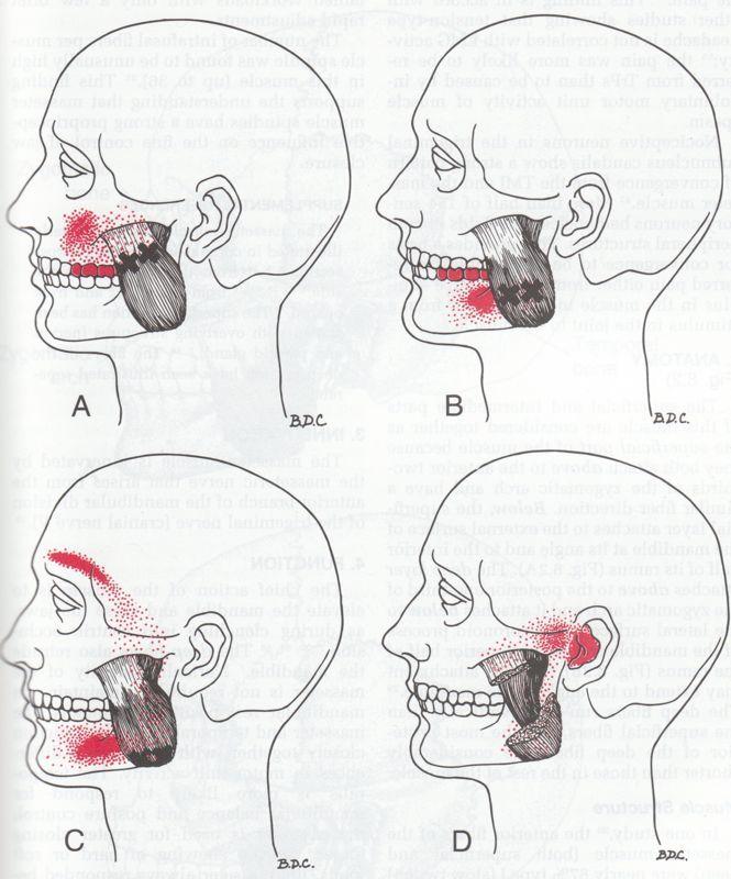mastoiditis pain relief