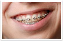 There are many different types of braces. Check them out!