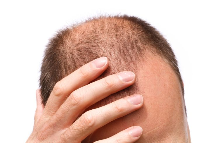 Helpful advice and tips from a hair transplant Cleveland clinic. #hairloss #Clevelandhairloss