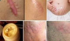 If you have visible scars on the body and they make you feel weird and bad, you can try our recipe that is natural. Also you might say that you can remove scars by regular meds and creams, surgeries, lotions, creams, ointments, and more, but natural is al