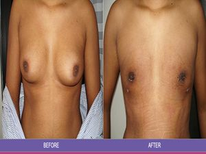 How Much Does Gynecomastia Surgery Cost? - http://statethefacts.org/howmuchgynecomastiasurgerycost/