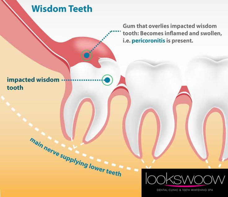 """PERICORONITIS"" - a dental disorder in which gum tissue becomes swollen and infected around the wisdom teeth, the third and final set of molars.  Experiencing such pain and inflammation on the said area?  Come and visit #Lookswoow for a Pericoronitis #Treatment before it becomes infected.  BOOK your appointment NOW: www.bestdentistindubai.com"