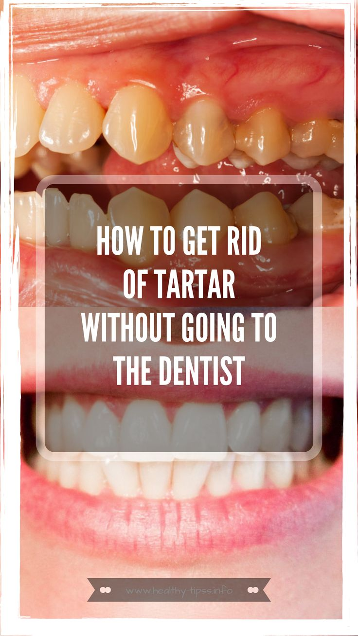 Mineral deposits on teeth are called tartar. Depositary