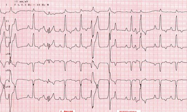 28 Best Images About Dcm On Pinterest Heart Disease