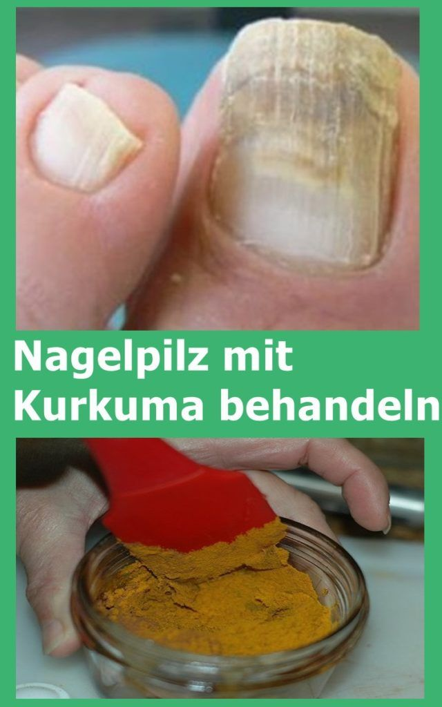 Nagelpilz mit Kurkuma behandeln   njuskam!