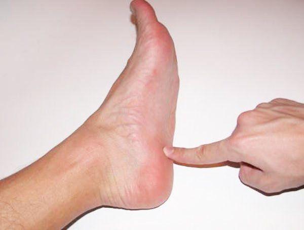 Découvrez les causes de votre douleur aux talons et les astuces pour vous en débarrasser rapidement !