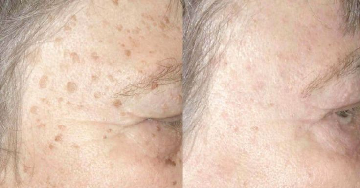 Age spots don't exactly pose a danger to your health, but they're not the nicest looking. Here are some gentle ways to lighten them that you'll be glad you learned...