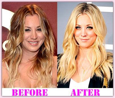52 Best Images About Plastic Surgery Celebrities Blog On
