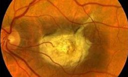 Human stem cell-derived retinal cells for macular diseases improves vision of nearly blind