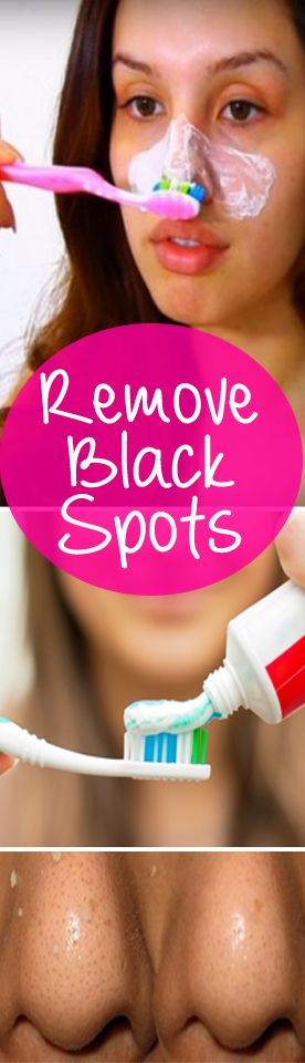 Remove black spots? How? There are several causes of blackheads – improper skin care, excessive consumption of junk food, but also hormonal changes.