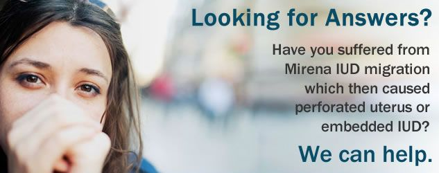 Mirena IUD side effects Migration and surgical removal 888-748-5454