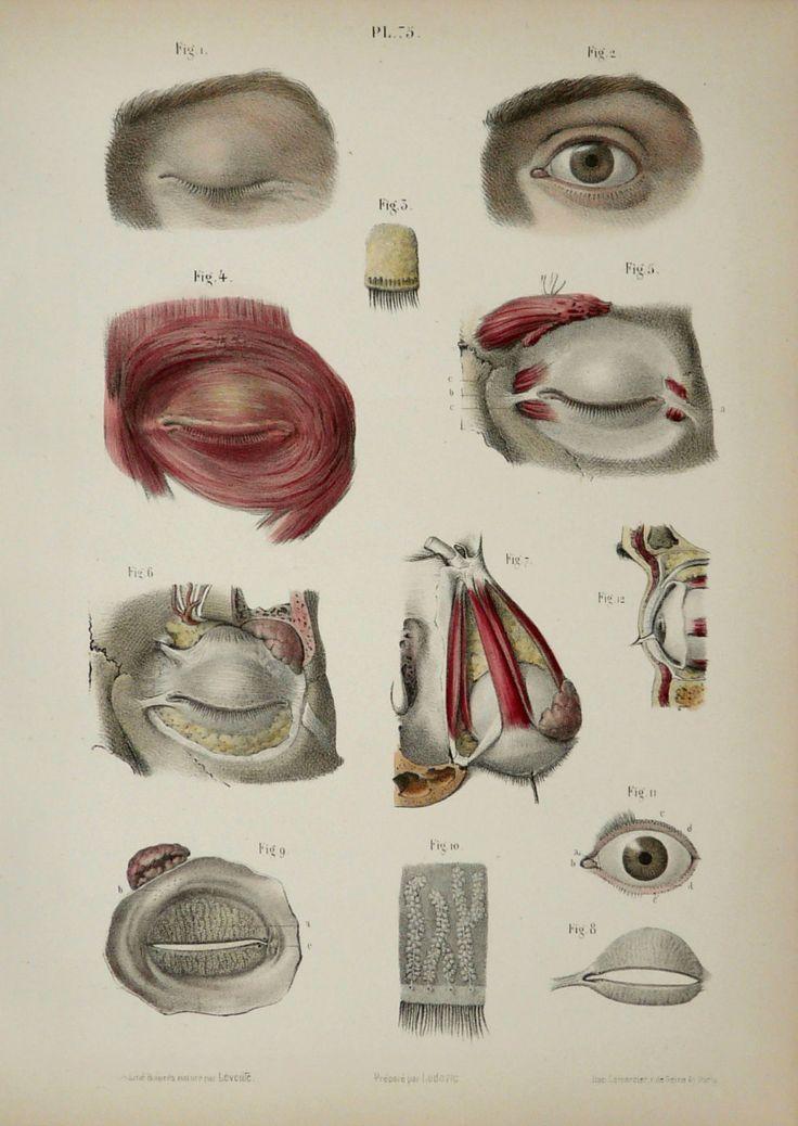 1867. Pl. 75. Dessin Jean-Baptiste Léveillé. Lithographie des yeux humains. Préparé par Ludovic. Imprimé par Lemercier, Paris.