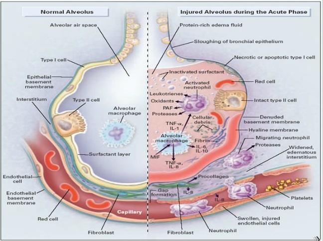 alveolar injury during acute phase of ARDS