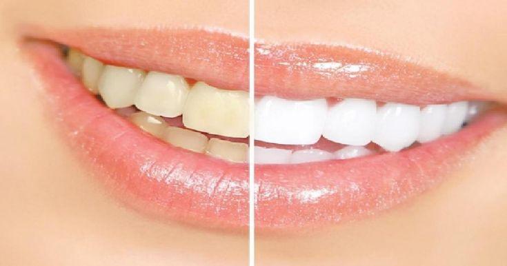 Top 4 des astuces pour blanchir les dents à la maison