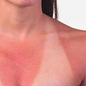 Search Herbal Remedy - http://www.searchherbalremedy.com/5-best-herbal-remedies-for-sun-burn/