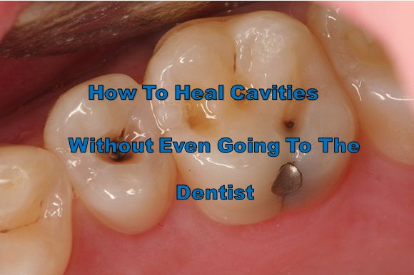 Learn how to heal cavities naturally without even going to the dentist. Try this new trend everyone seems to be getting results with!