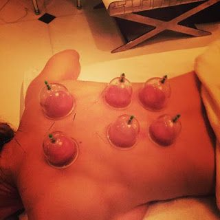 Madonna Cupping Therapy To Overcome Stress #Cupping Healthy Lifestyle News