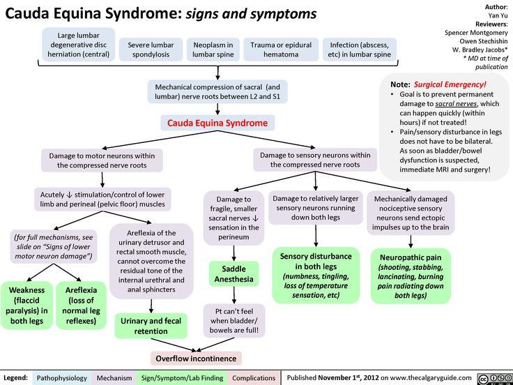Cauda Equina Syndrome | Cauda%20Equina%20Syndrome.jpg
