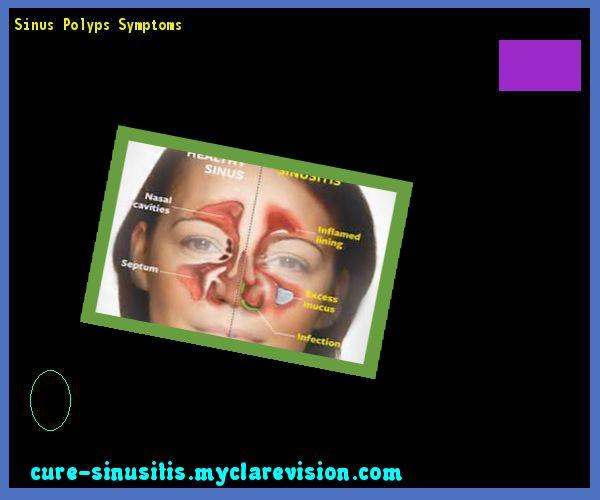Sinus Polyps Symptoms 074300 - Cure Sinusitis