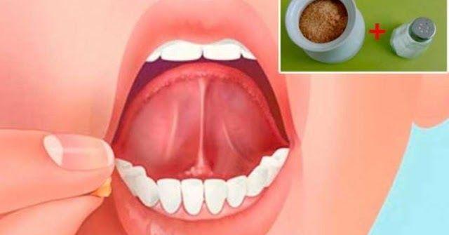 ConsejosdeSalud.info: Coloca sal con azúcar debajo de tu lengua antes de dormir y algo increíble sucederá!