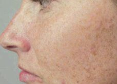 nos solutions naturelles pour enlever tache brune sur la peau du visage