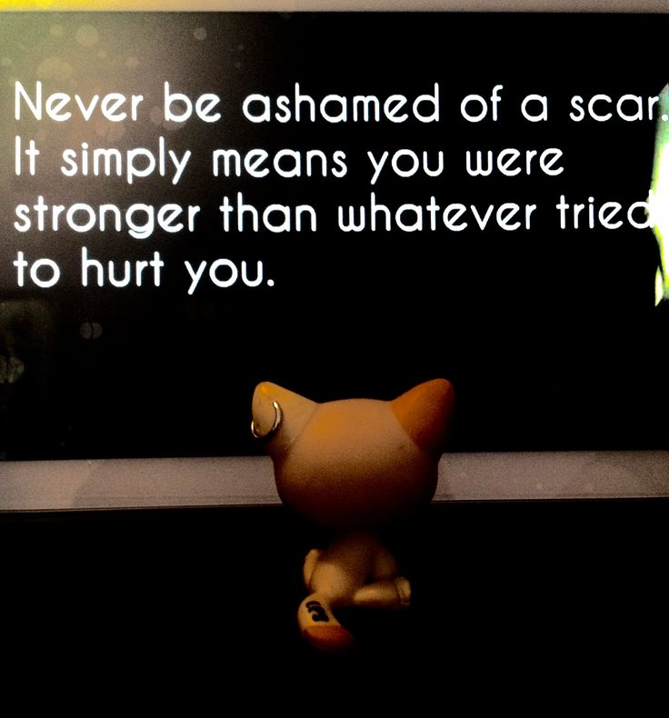 Many scars are ones in your mind. They control how you think each day.   ((quote by me))