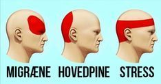 Sådan kurerer du hovedpine på 5 minutter – uden at tage piller