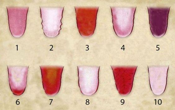 Un simple coup d'œil à votre langue dans le miroir peutvous aider à déterminer si vous avez un problème de santé. Ainsi, au lieu de vousdemander pourquoi votre langue est soudainement devenue blanche ou plus foncée, continuez à lire attentivement. La fonction et l'apparence de la langue sont beaucoup plus importantes que vous ne le …