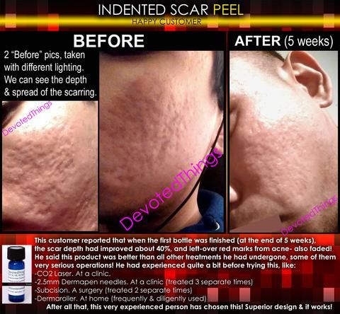 Treatment for Indented Scars Acne Chicken Pox Pitted Scar Removal Peel With Hyaluronic Acid