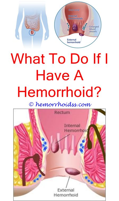 Can Hemorrhoids Cause Tenesmus? can you swim with bleeding
