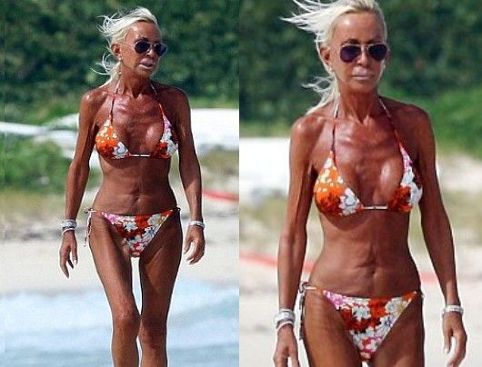 Chatter Busy: Donatella Versace Plastic Surgery she has issues....big issues...sad