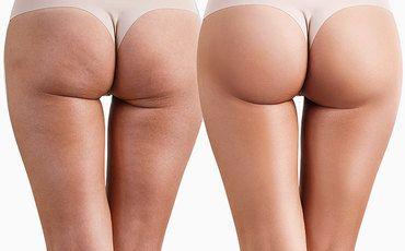 Ким Кардашьян лопнет отзависти: 5 эффективных упражнений длякрасивой попы!
