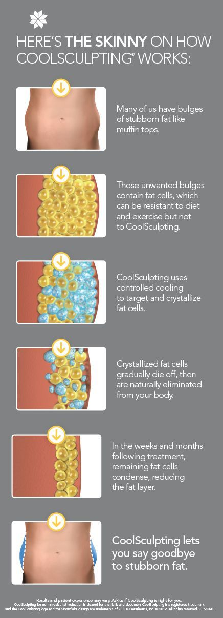 Coolsculpting 174 Is The Coolest Most Innovative Non