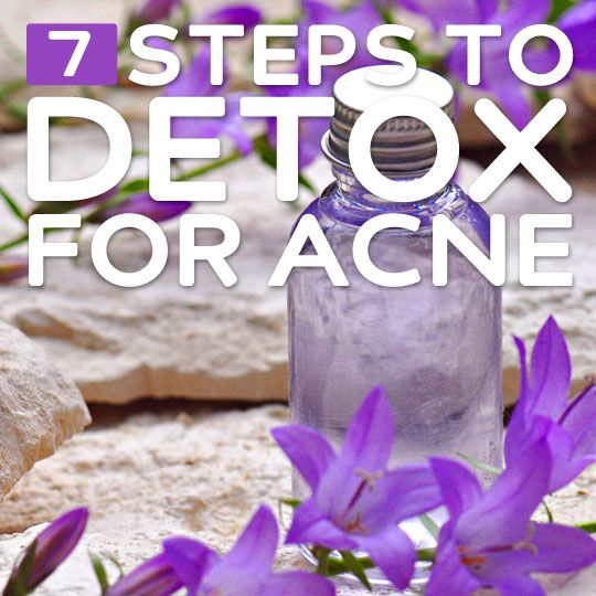 7 Steps to Detox for Acne- how to get clear skin naturally.