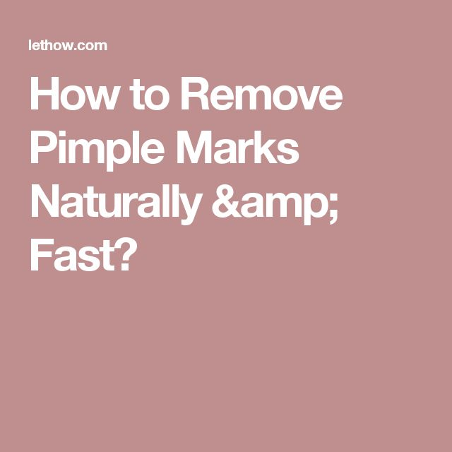How to Remove Pimple Marks Naturally & Fast?