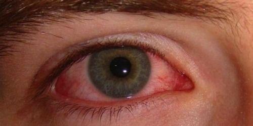 Skin Rosacea, Ocular Rosacea and Dry Eye