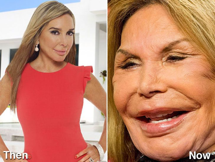 Aging Celebrities Pictures - Freaking News