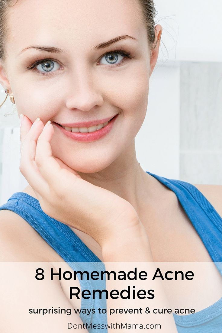 8 Homemade Acne Remedies - surprising ways to get rid of acne without harsh…