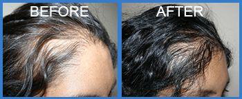 If du letar efter den bästa hårtransplantation kirurgi och restaurering, det finns ingen bättre plats än OYEZ hårersättning.