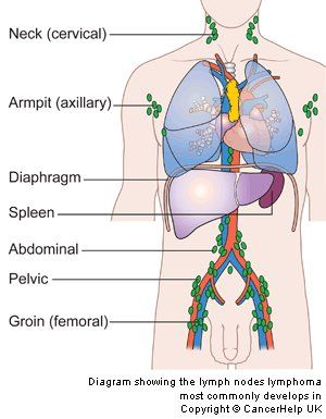 an essay on adult hodgkin lymphoma Burkitt lymphoma research essay lymphoma essay in patients with hodgkin lymphoma the cancer cells clusters in lymph nodes adult or embryonic stem cells can.