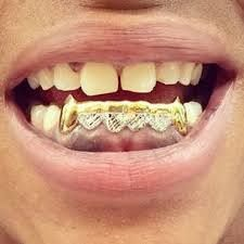 bottom gold grill with diamonds    Grills in Charlotte : Starting at $40 a tooth: gold fangs and grillz. We Service Atlanta, Columbia and other cities in North Carolina and South Carolina